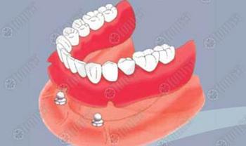 ในหลวงพระราชทาน20,000รากฟันเทียมใส่ให้คนแก่
